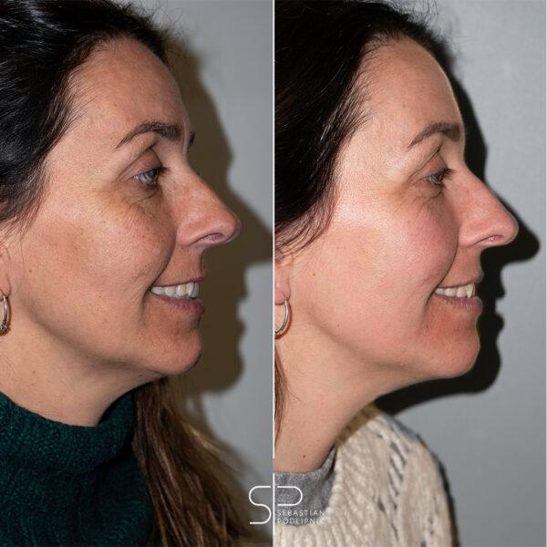 Antes y después del resultados del tratamiento con cremas de las manchas faciales